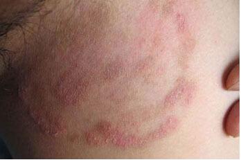 过敏性皮炎护理