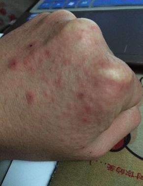 引起湿疹的几个一般的常见的因素是什么