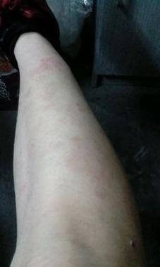 湿疹不可怕可怕的是不知道原因