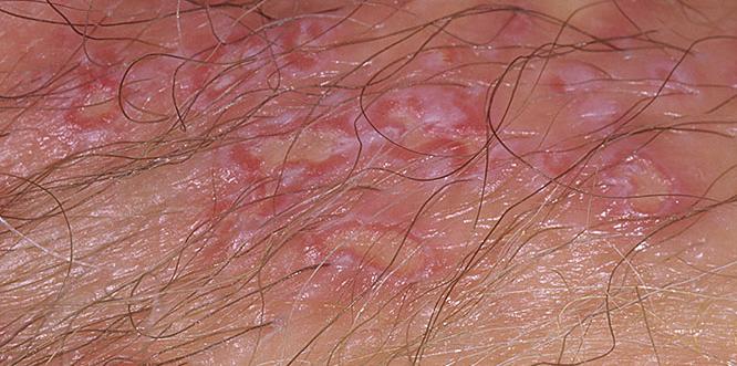 引起阴囊湿疹的内外部因素